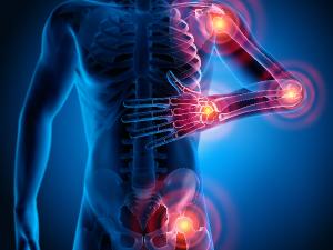 Entzündungshemmende Ernährung gegen schmerzende Gelenke